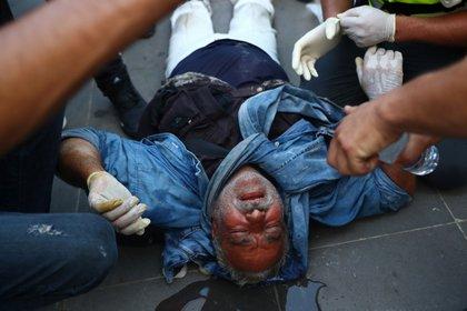 Un manifestante herido (REUTERS / Hannah McKay)